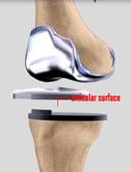 Minimally Invasive Total knee Replacement
