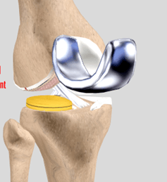 Osteotomy & Uni-compartmental knee Arthroplasty