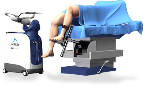 MAKOplasty ® Robotic Assisted Hip & Knee Surgery